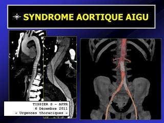TISSIER S   AFPR 6 D cembre 2011    Urgences thoraciques