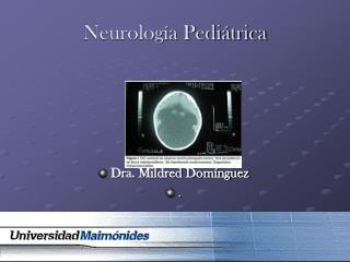 Neurolog a Pedi trica