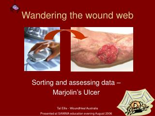 Wandering the wound web