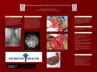 Adult Intussusception: Delayed Presentation and Review  CM Watson MD and SA Fann MD USC School of Medicine, Columbia, So