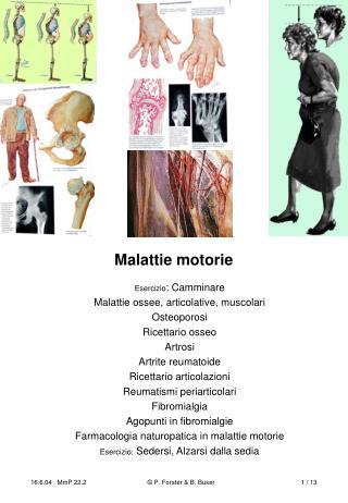 Malattie motorie