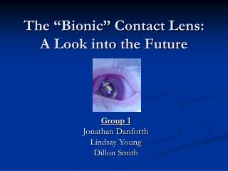 The  Bionic  Contact Lens: A Look into the Future