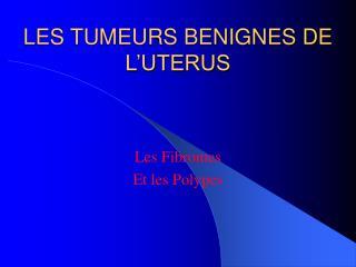 LES TUMEURS BENIGNES DE L UTERUS