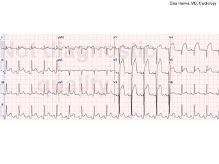 Elias Hanna, MD, Cardiology