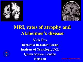MRI, rates of atrophy and Alzheimer s disease