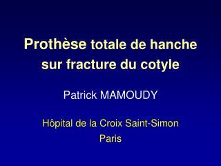 Proth se totale de hanche sur fracture du cotyle