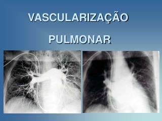 VASCULARIZA  O  PULMONAR