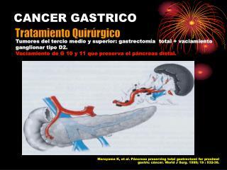 Tumores del tercio medio y superior: gastrectom a  total  vaciamiento ganglionar tipo D2. Vaciamiento de G 10 y 11 que p