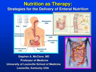 Nutrition as Therapy: Strategies for the Delivery of Enteral Nutrition