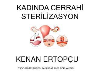 KADINDA CERRAHI STERILIZASYON