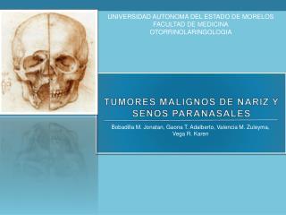TUMORES MALIGNOS DE NARIZ Y SENOS PARANASALES