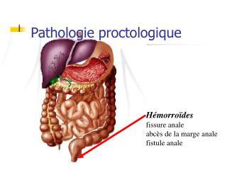 Pathologie proctologique