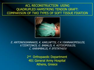 ACL RECONSTRUCTION  USING                                         QUADRUPLED HAMSTRING TENDON GRAFT:  COMPARISON OF TWO