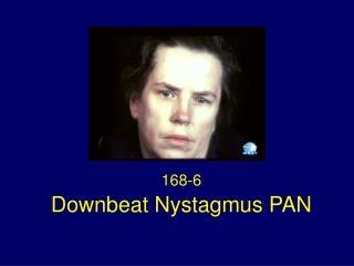 Downbeat Nystagmus PAN