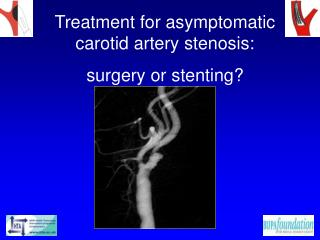 Treatment for asymptomatic carotid artery stenosis:  surgery or stenting