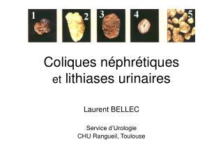Coliques n phr tiques  et lithiases urinaires