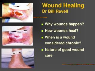 Wound Healing Dr Bill Revell