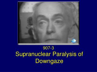 Supranuclear Paralysis of Downgaze