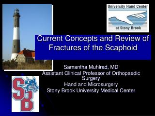 Current Concepts and Review of Fractures of the Scaphoid