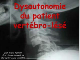 Dysautonomie  du patient  vert bro-l s