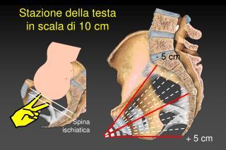 Stazione della testa in scala di 10 cm