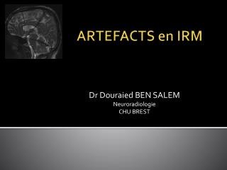 ARTEFACTS en IRM