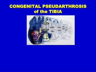 CONGENITAL PSEUDARTHROSIS  of the TIBIA