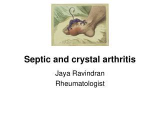 Septic and crystal arthritis
