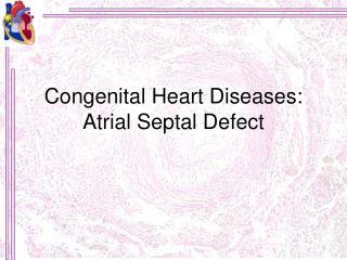 Congenital Heart Diseases: Atrial Septal Defect