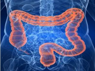 Inflammatory Bowel Disease Treatment