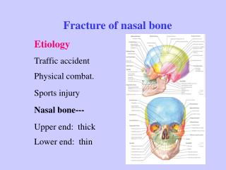 Fracture of nasal bone Etiology Traffic accident Physical combat. Sports injury Nasal bone---  Upper end:  thick Lower e