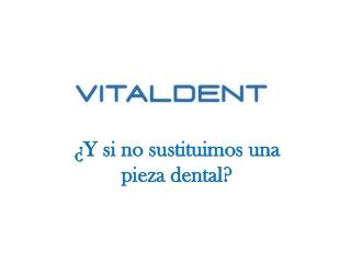 Vitaldent: la sustitucion de piezas dentales