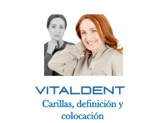 Vitaldent informa sobre las carillas dentales