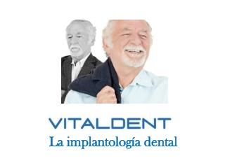Vitaldent implantologia