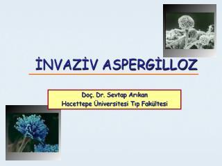 INVAZIV ASPERGILLOZ