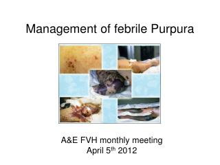 Management of febrile Purpura