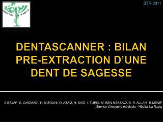 DENTASCANNER : BILAN PRE-EXTRACTION D UNE DENT DE SAGESSE