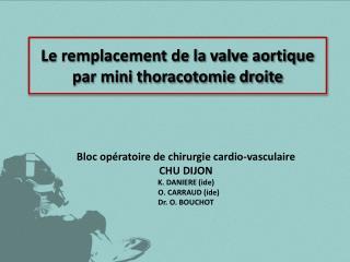 Le remplacement de la valve aortique par mini thoracotomie droite