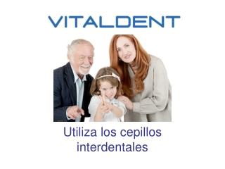 Vitaldent Fuerteventura y el uso de cepillos interdentales
