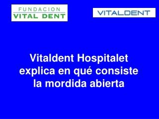Vitaldent Hospitalet explica que es la mordida abierta