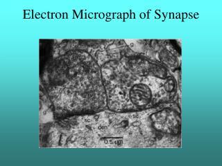 Electron Micrograph of Synapse