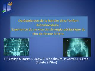 Ost on crose de la hanche chez l enfant dr panocytaire : Exp rience du service de chirurgie p diatrique du chu de Pointe