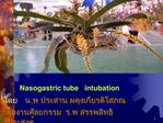 Nasogastric tube   intubation     .             .