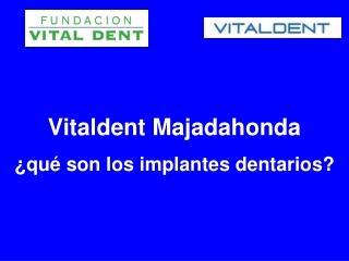 Los implantes dentales en Vitaldent Majadahonda
