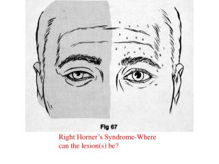 Right Horner s Syndrome-Where can the lesions be
