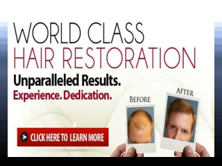 Hair Loss Restoration Products