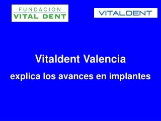 Vitaldent Valencia explica los avances en implantes