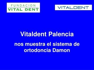 Vitaldent Palencia nos muestra la ortodoncia Damon
