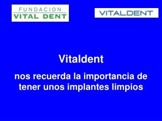 Vitaldent y la importancia de tener los implantes limpios
