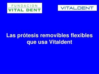 Las protesis removibles flexibles que usa Vitaldent